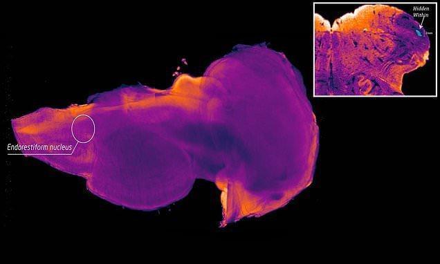 کشف منطقه ای ویژه در مغز انسان برای درمان پارکینسون