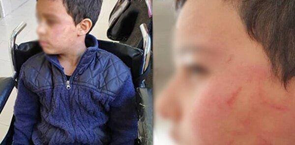 دوباره تنبیه بدنی دانش آموز؛ اینبار معلم ورزش